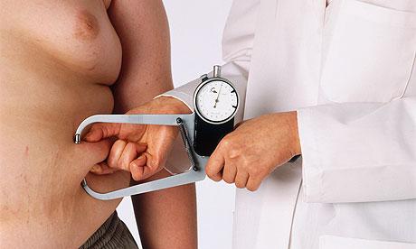 Gewichtsverlies zware mensen onmogelijk, behandeling ineffectief